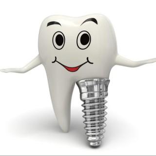 Perfect Dental Implants
