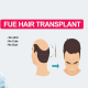 chandigarhhairtransplantation