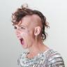 Lady Alopecia
